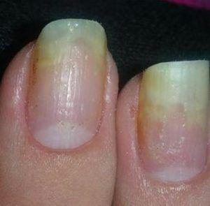 Онихолизис или отслоение ногтя от ложа: Причины, виды ...
