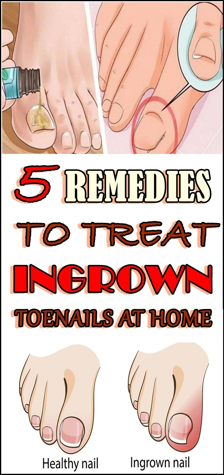 5 remedies to treat ingrown toenails at home with images