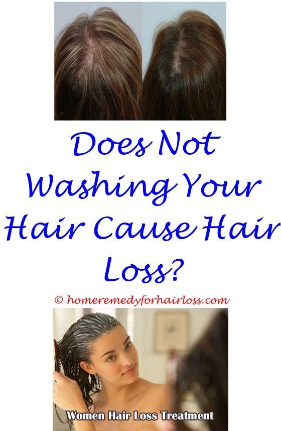 Hair Fall And Hair Loss   Anti hair loss shampoo, Hair loss and ...