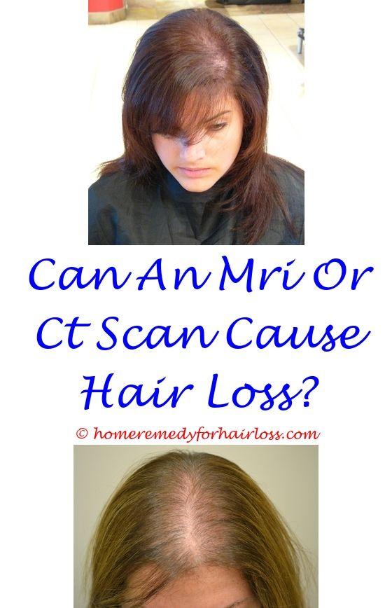 Scalp Psoriasis And Hair Loss Apri Birth Control And Hair Loss