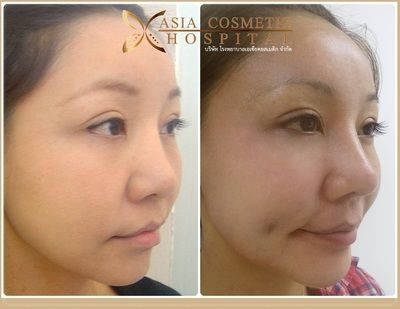 Dimple Creation Before And After Photos Thailand - Asia Clinic - plastic surgery consultant sample resume