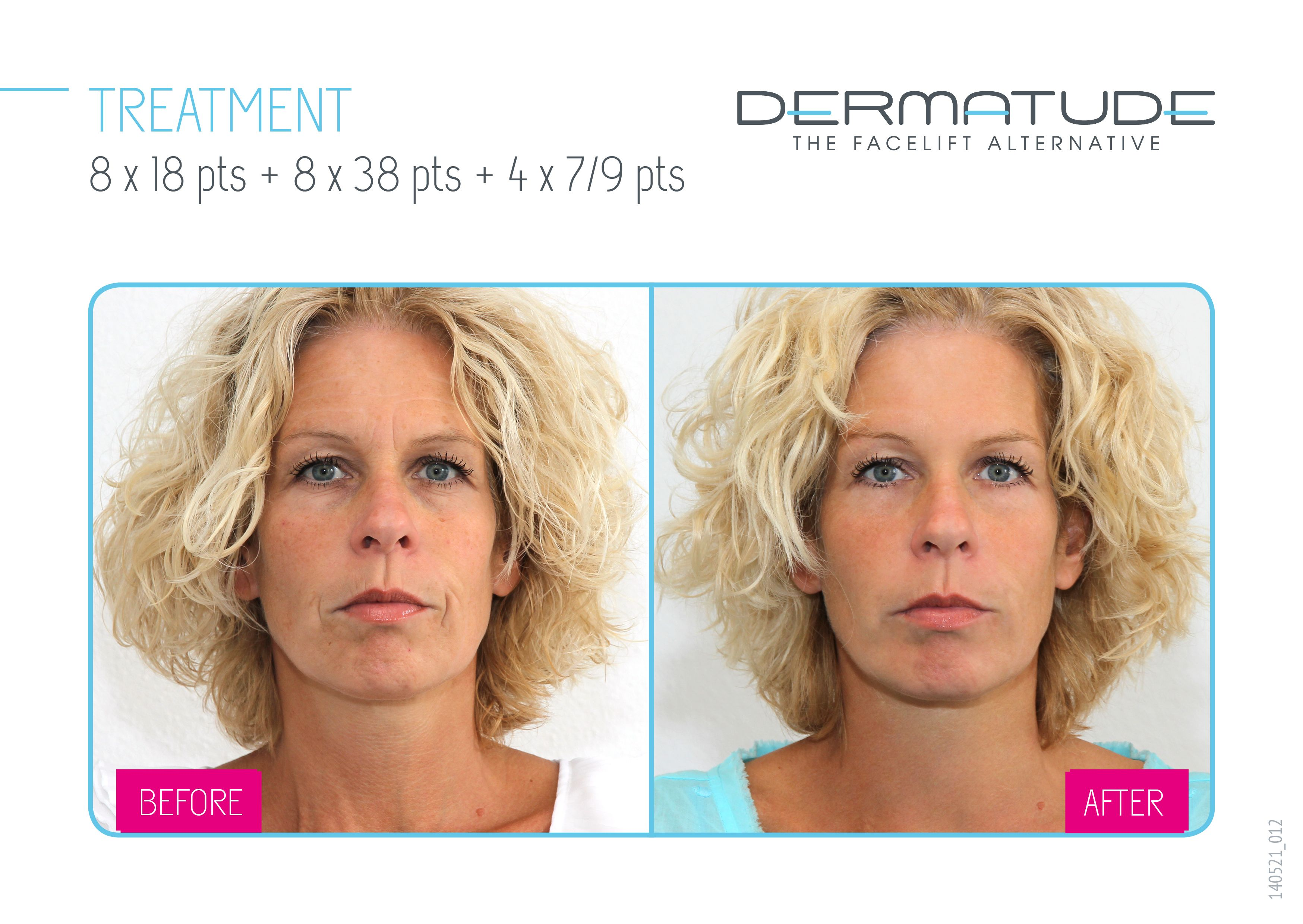 Before And After Facial Front Dermatude Anti Aging Treatments