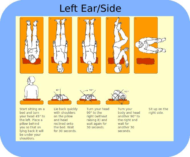Vertigo treatment vertigo relief and physical therapy exercises