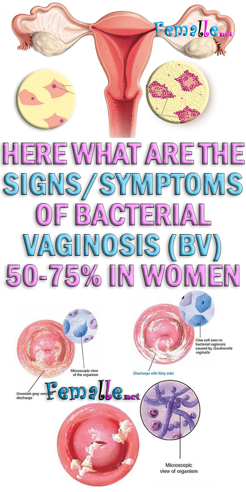 symptom of vaginal bacterial infection