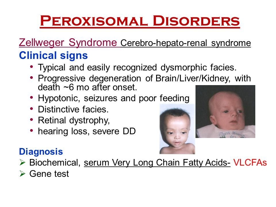 Pin by nonas arc on Zellweger Syndrome   Hypotonia, Muscle ...