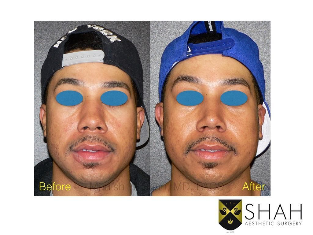 Pin on Rhinoplasty Before and After Photos