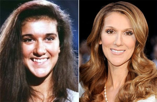 Celine Dion Before And After Plastic Surgery Always Interesting What