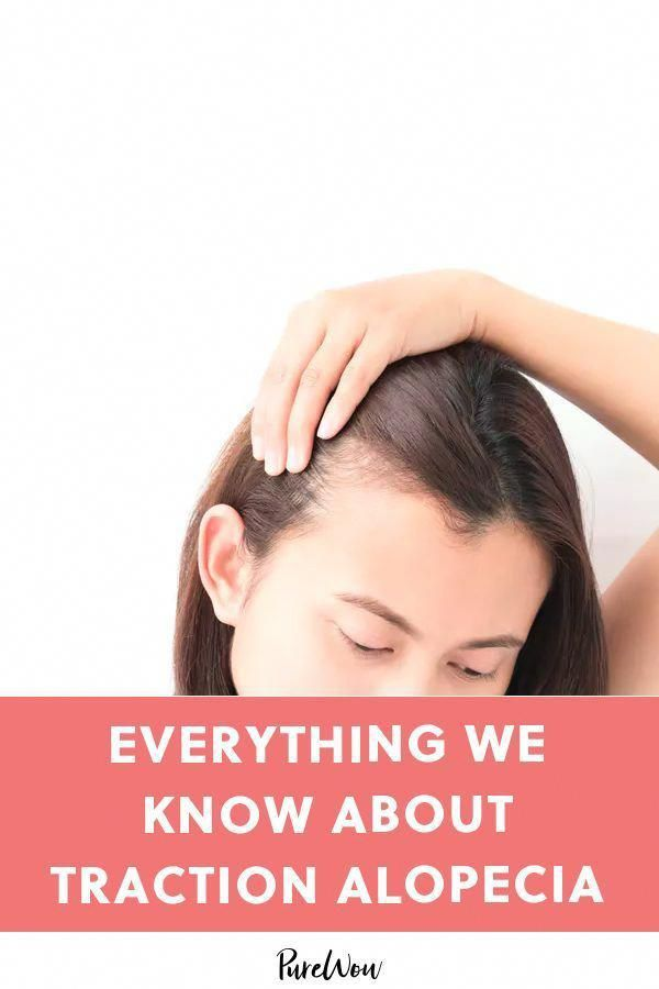 What Causes Traction Alopecia? And How Do You Treat It? #purewow #hair #beauty #haircare #BestNaturalShampooForHairLoss