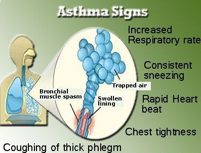 Common Signs And Symptoms Of Asthma Include Coughing Coughing From Asthma Often Is Worse At Night Or Early In The Morning Making It Hard To Sleep