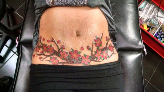 Tummy Tuck Tattoo Coverup Belly Tattoos Cover Up Tattoos Tummy