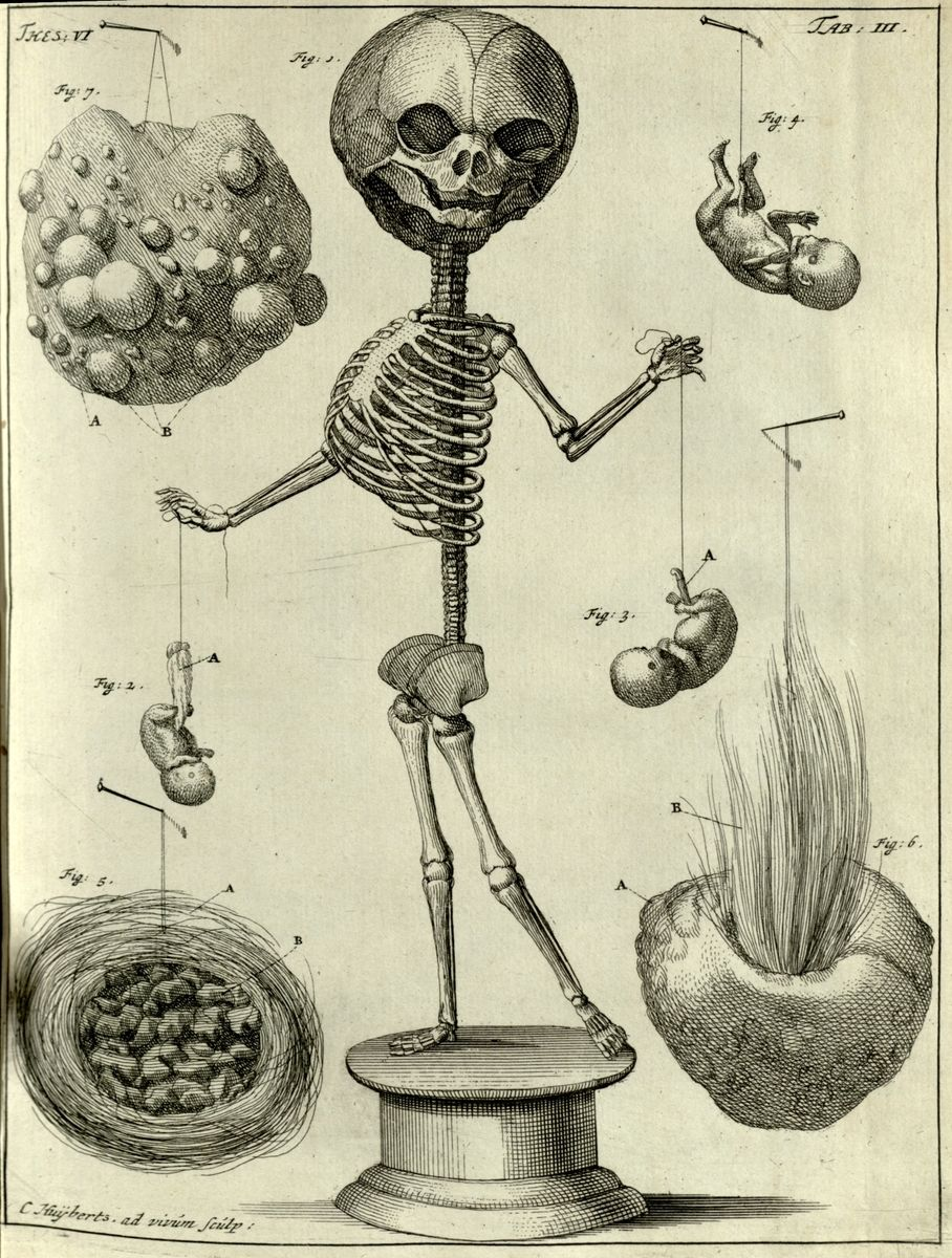 The College of Physicians of Philadelphia Digital Library | Fetal ...