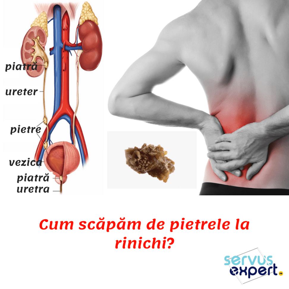 varicoză și rinichi)