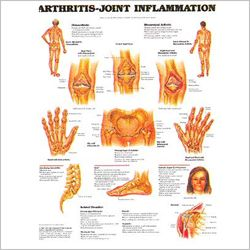 how to tell the difference between osteoarthritis and rheumatoid arthritis