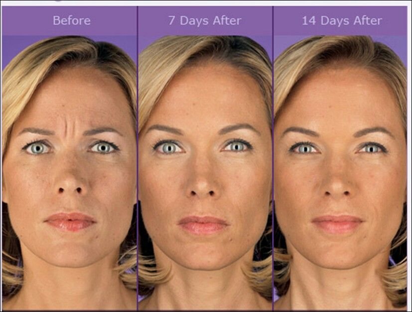 How long does it take to see results from lipotropic injections