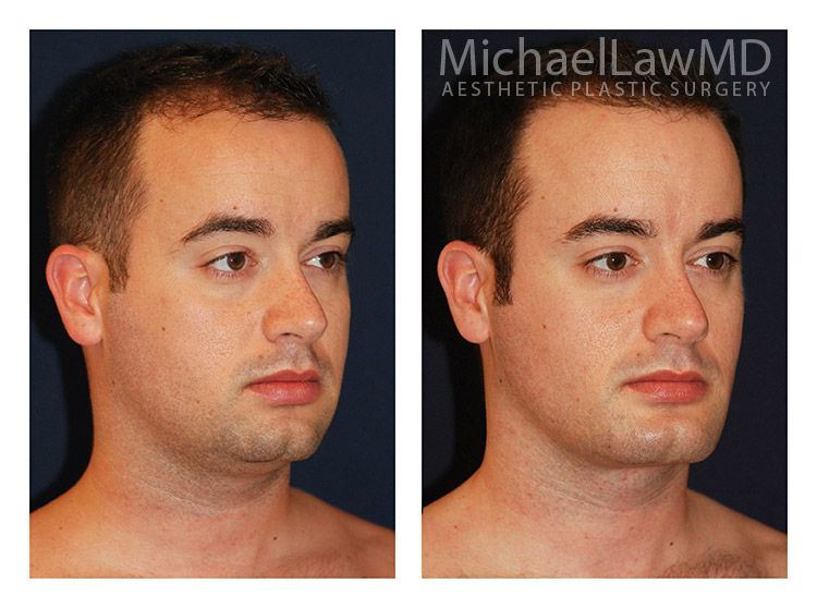 surgery cosmetic facial in nc and asheville