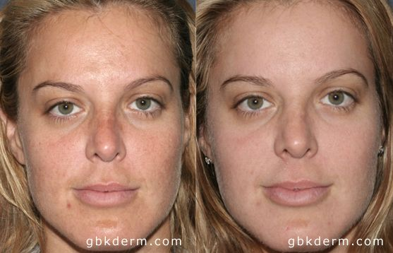 Before And After Photos San Diego Ca Acne Scar Removal Acne Scar Removal Natural Cosmetics Laser