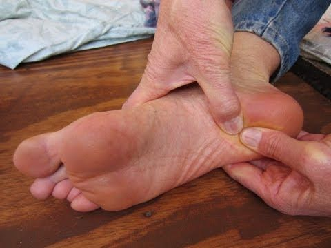 Pain on bottom of foot ache agree
