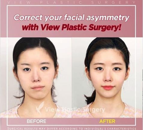 Operasi Wajah Asimetris Plastic Surgery Facial Contouring Beauty Clinic