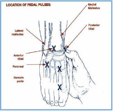 Bandages For Pressure Ulcers Apbi 0 8 1 2 Treat As Venous