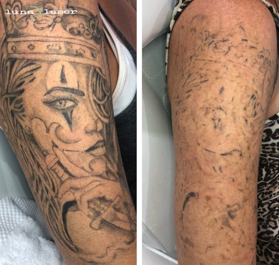 The Shocking Revelation Of How Much Laser Tattoo Removal ...