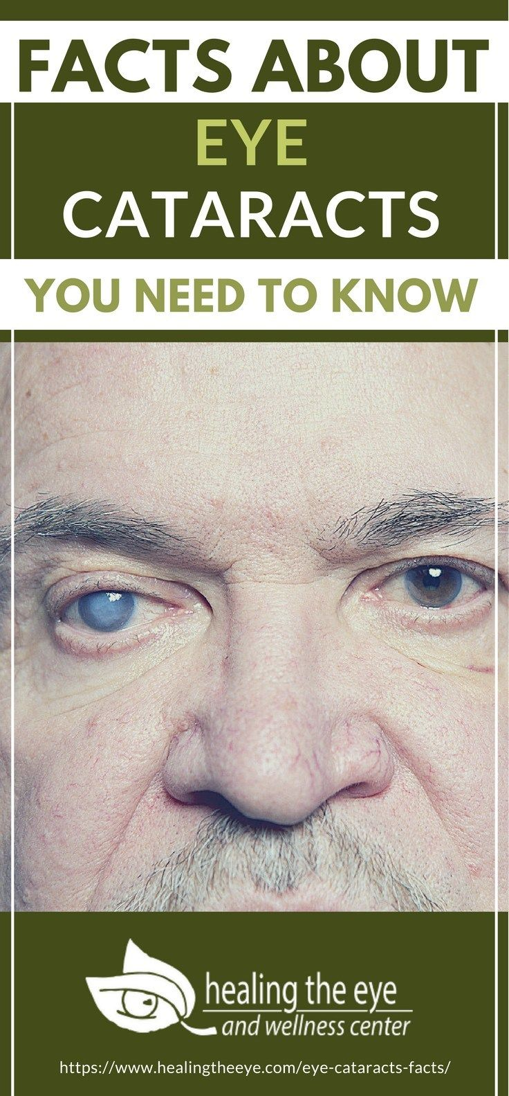 Facts About Eye Cataracts You Need To Know Eye cataract