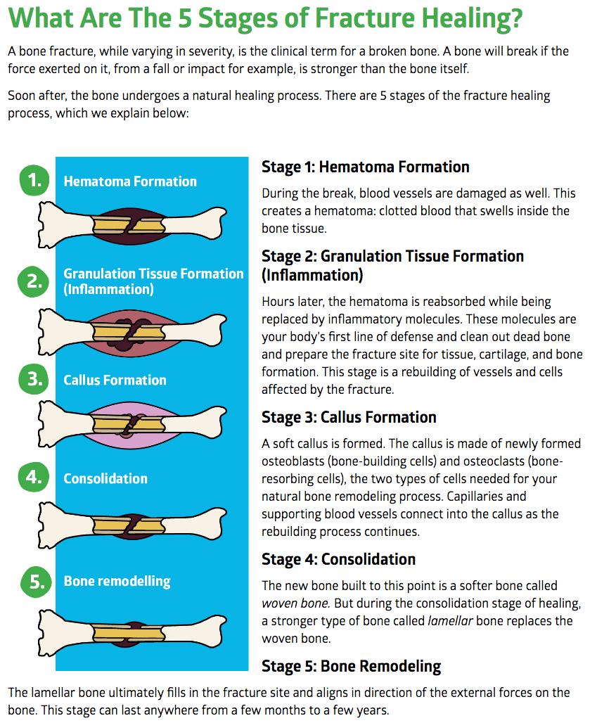 Bone Fracture Healing Guide Fracture Healing Bone Healing Wound Healing Nursing
