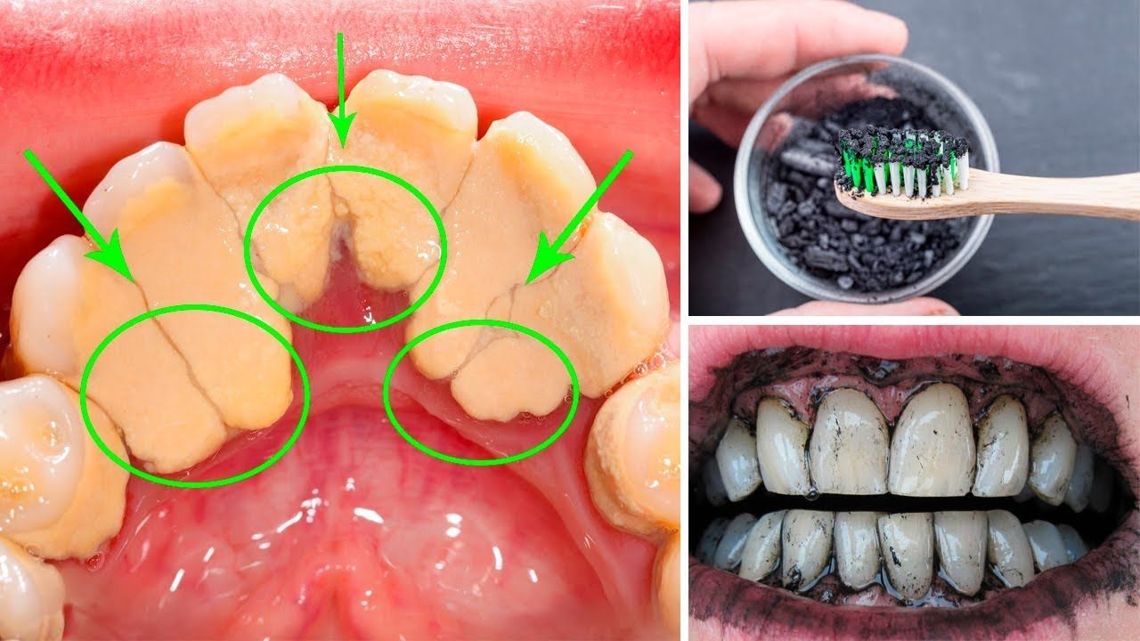 How to remove plaque and tartar from teeth at home in