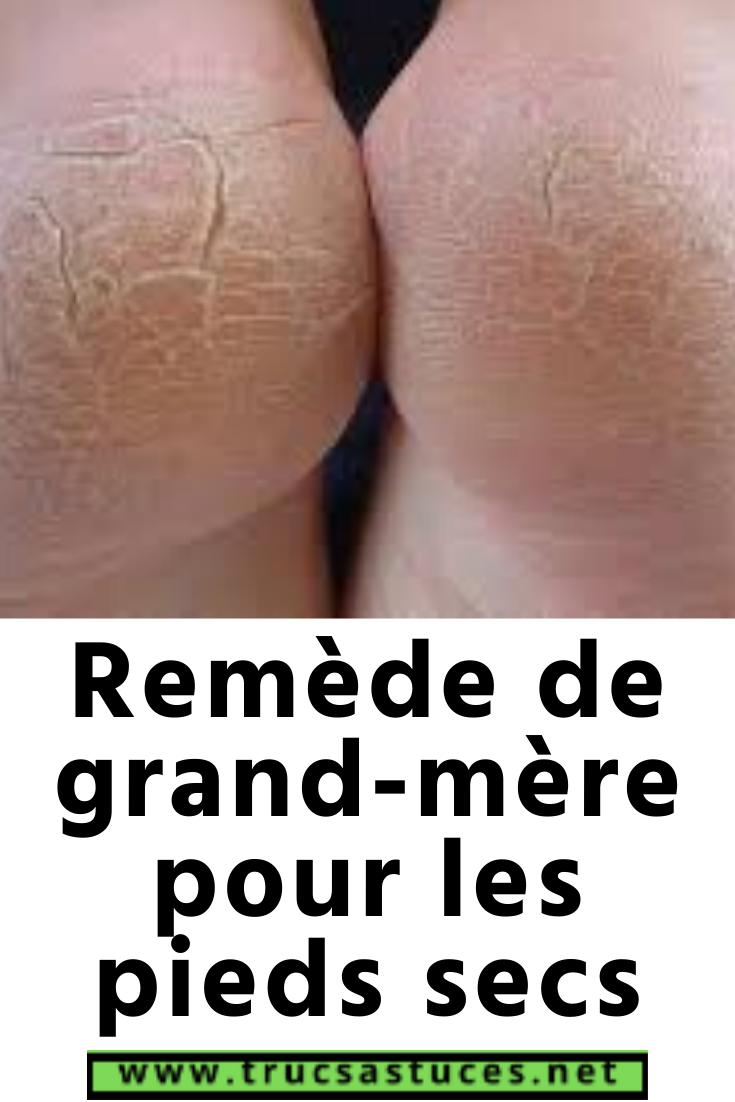 Crevasse Pied Remede Grand Mere : crevasse, remede, grand, Remède, Grand-mère, Pieds, Pieds,, Soins