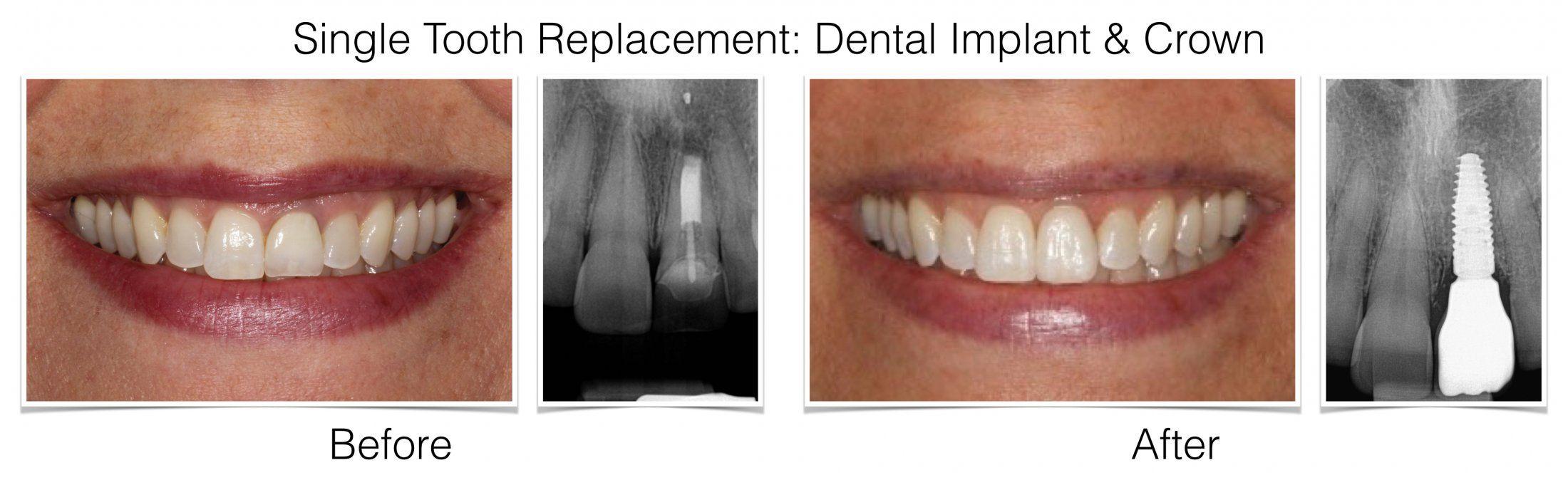 Esthetic Dental Implants Anterior Teeth Philadelphia Pa