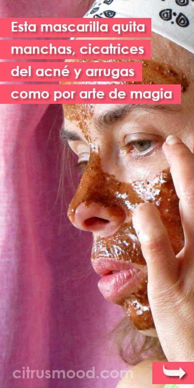 Esta mascarilla quita manchas, cicatrices del acné y arrugas como por arte de magia is part of Acne facial - Esta mascarilla quita manchas, cicatrices del acné y arrugas como por arte de magia