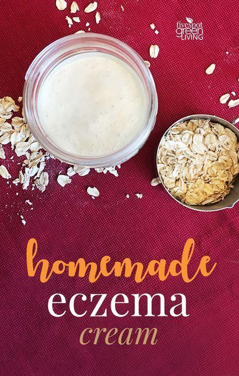 Super Quick and Easy Homemade Eczema Cream Recipe for Dry