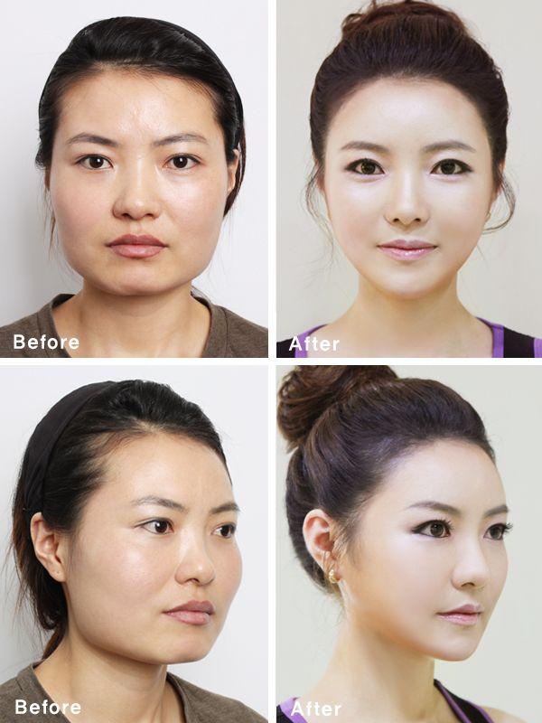 makeup before and after korean - photo #22