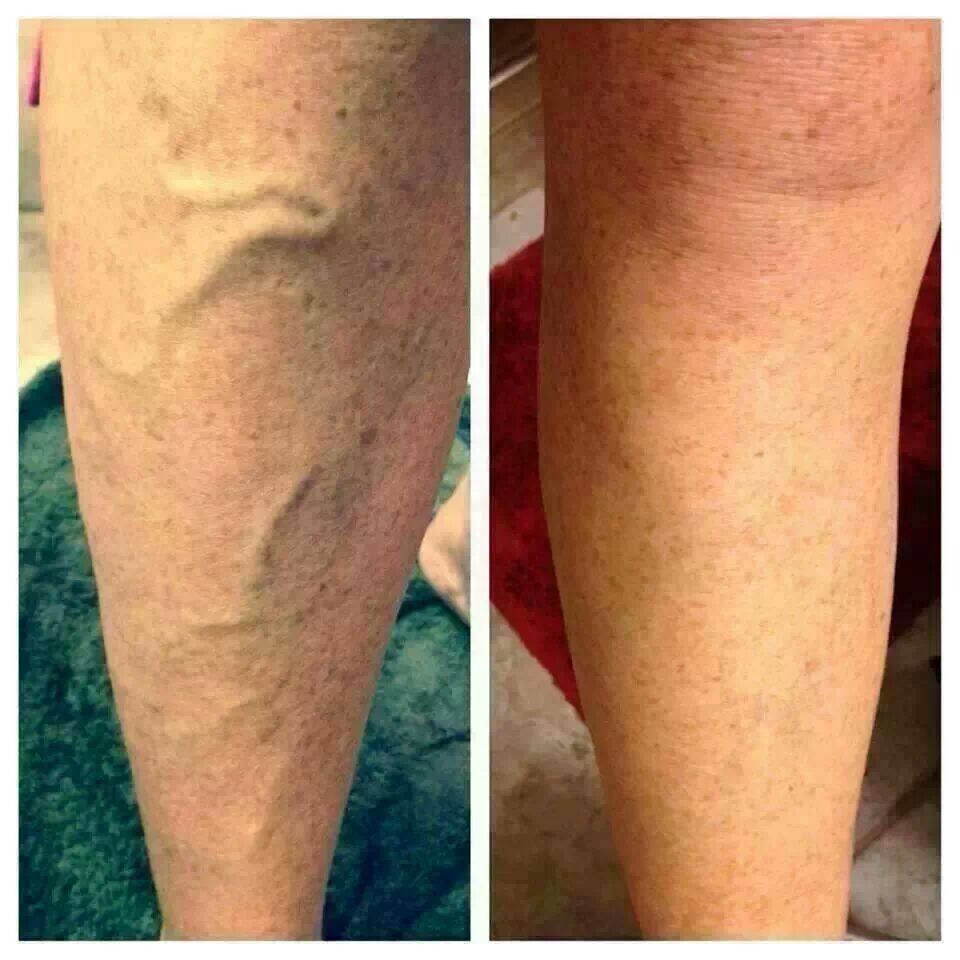 $45 for defining gel. get rid of varicose veins with out doing