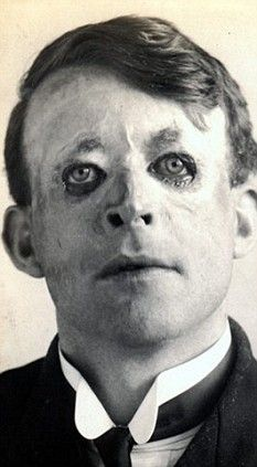 Photo of Pictured: First plastic surgery that saved officer from horrific injuries in First World War