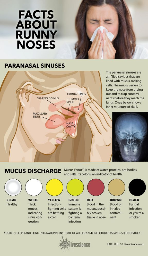 diagram of sinuses and chart of mucus colors