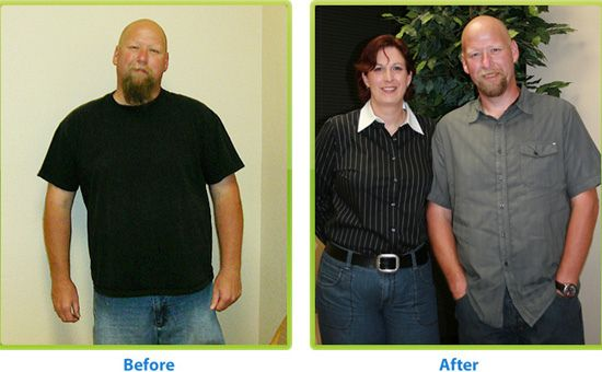 Weight Loss Before And After Surgery The Best Place To Find How Have Joyful Life
