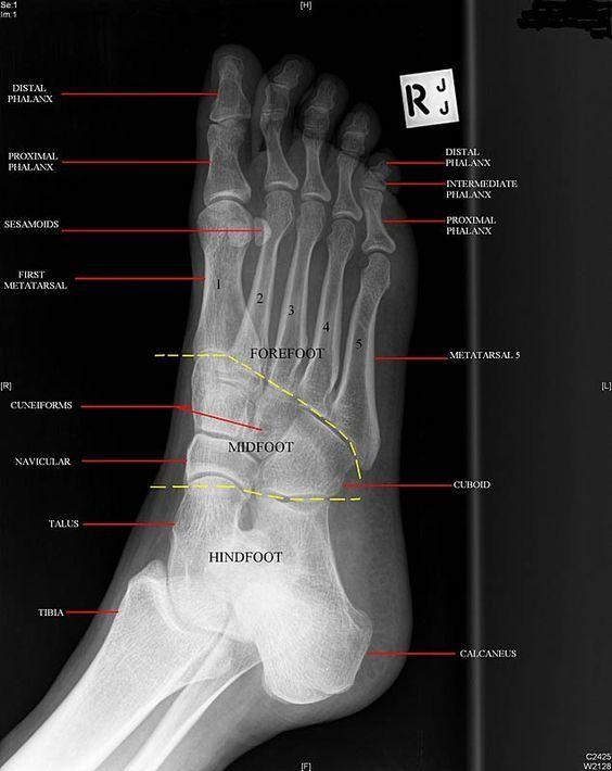 Anatomy Musculoskeletal X Ray Google Search Rad School
