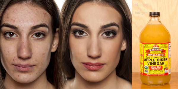 Before And After Pictures Of A Woman Who Used Apple Cider Vinegar To Remove Her Acne