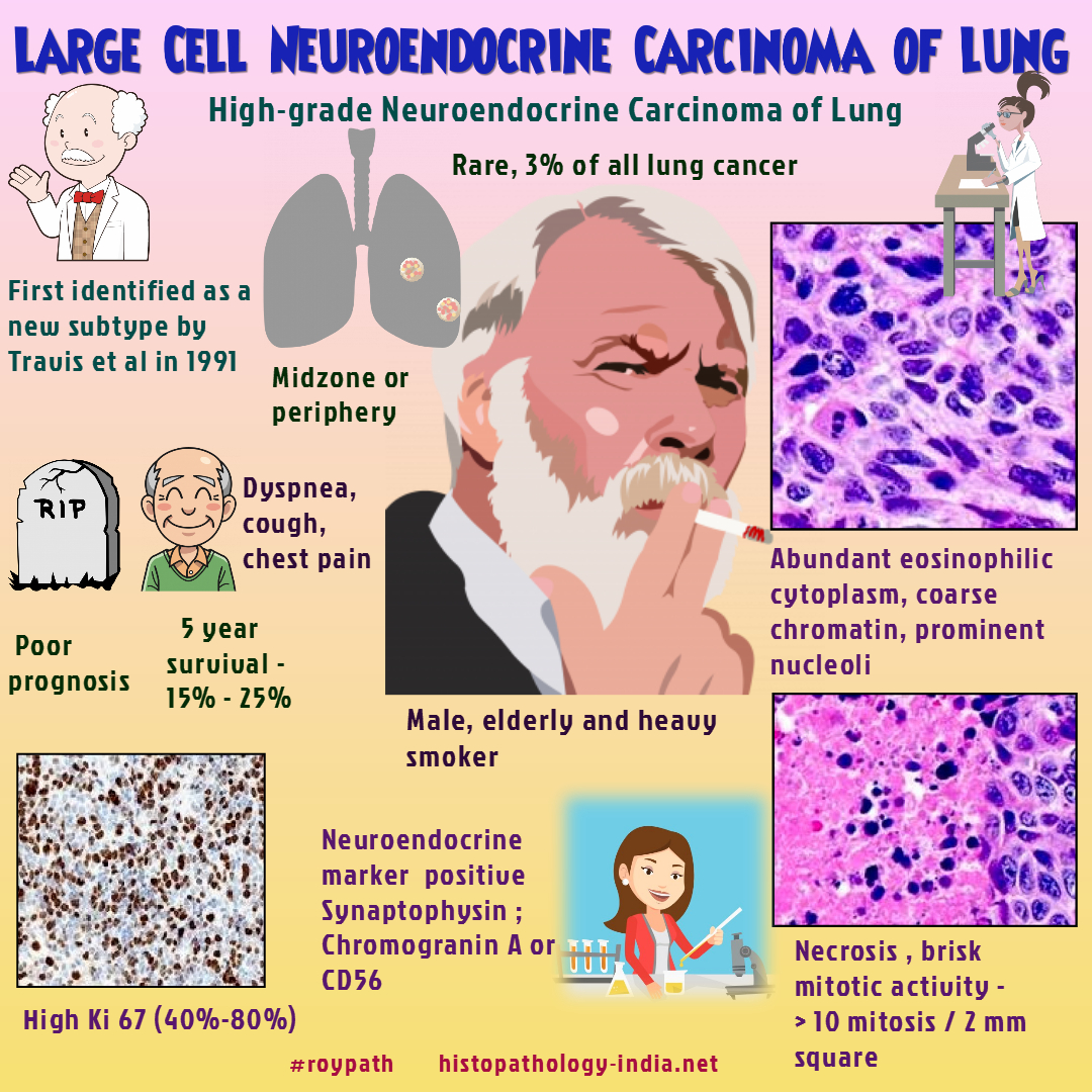 Large Cell Neuroendocrine Carcinoma Is A High Grade Neuroendocrine