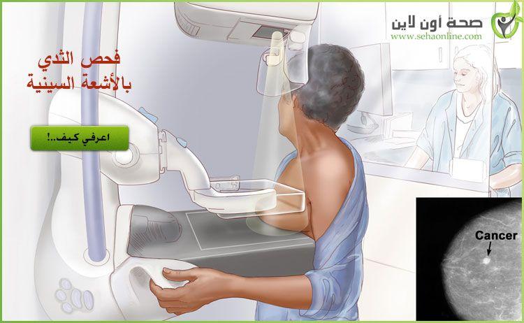 فحص الثدي بالأشعة السينية