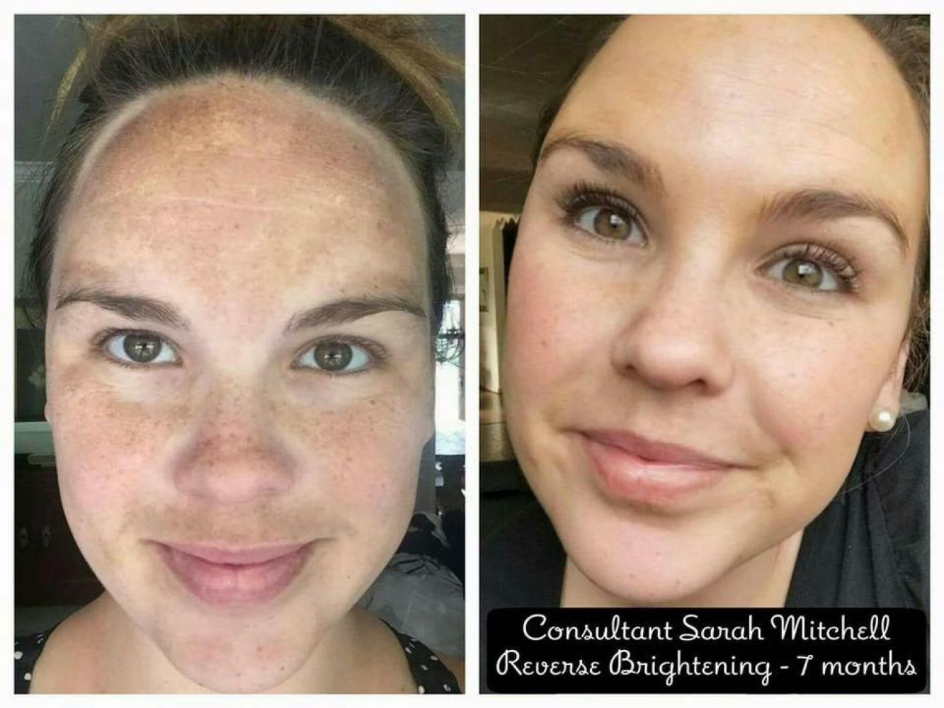 Instant Makeover: A Brightening Treatment with Same-DayResults