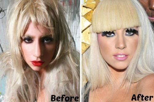 Lady Gaga Plastic Surgery Before And After Photo Nose Job Cirurgia Plastica De Celebridade Cirurgia Plastica Maquiagem De Celebridades