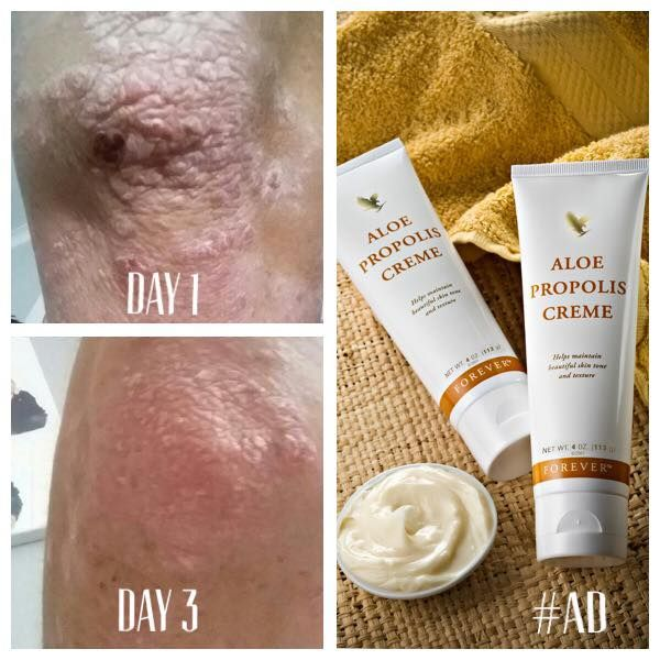 My lovely customers AMAZING results from using the Aloe