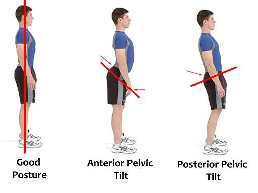 41+ Anterior pelvic tilt back pain trends