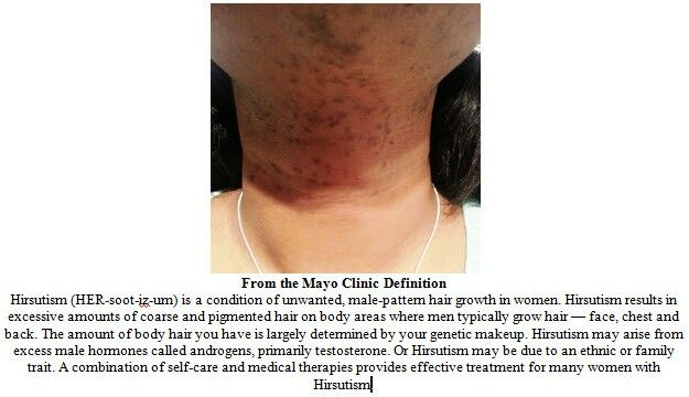 Polycystic Ovarian Syndrome Hirsutism Natural Treatment