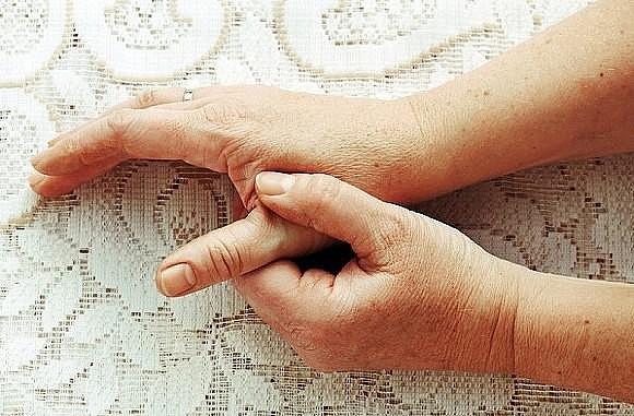 Артрит - симптомы, причины, виды и лечение артрита | Медицина на