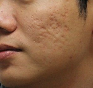 How do you cover up acne craters on your face? 150k - Bodybuilding ...