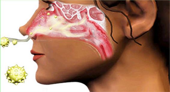 患鼻炎多年,久治不癒!這一配方喝一個月鼻炎就好了!發給需要的人試試! - MEGA SHARES