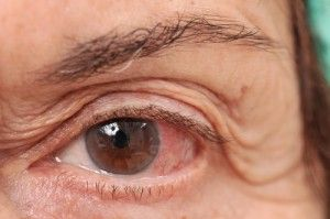 Eye Allergies Natural Remedies For Itchy Red Watery Eyes