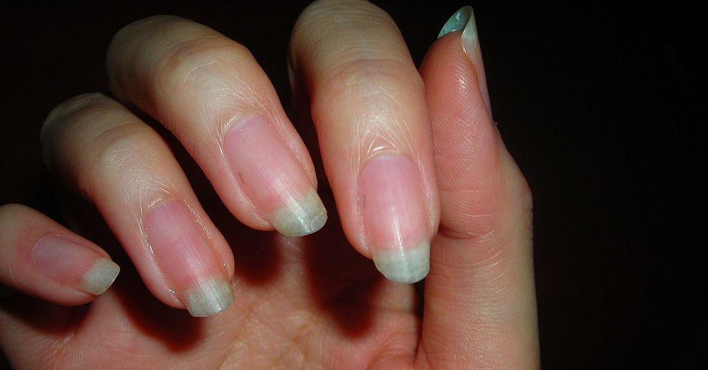 Diy nail strengthener apple cider vinegar or salt and